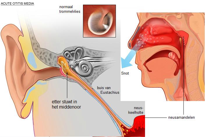 oorontsteking symptomen